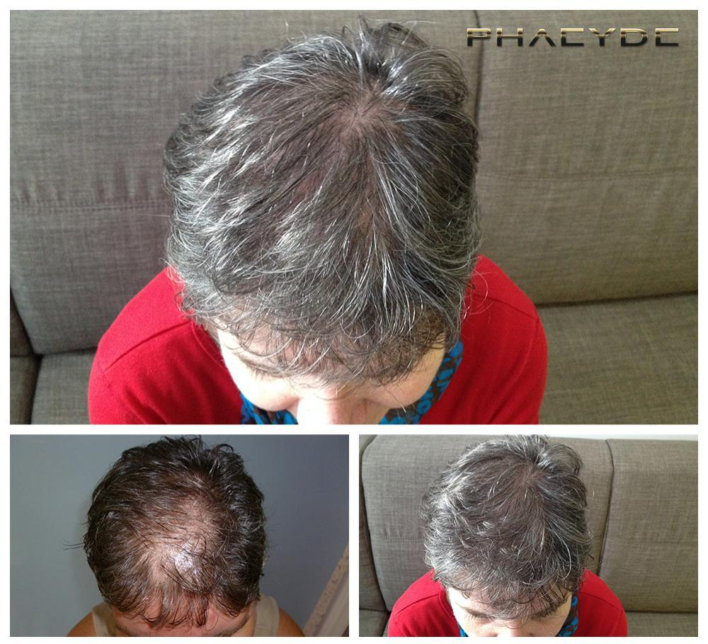 Hair transplant fue results before after photos erika d - PHAEYDE Clinic