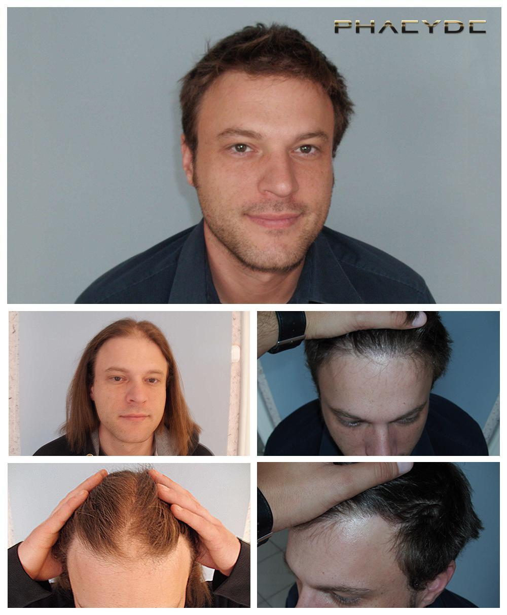 Hair transplant fue results before after photos gergely szalai - PHAEYDE Clinic