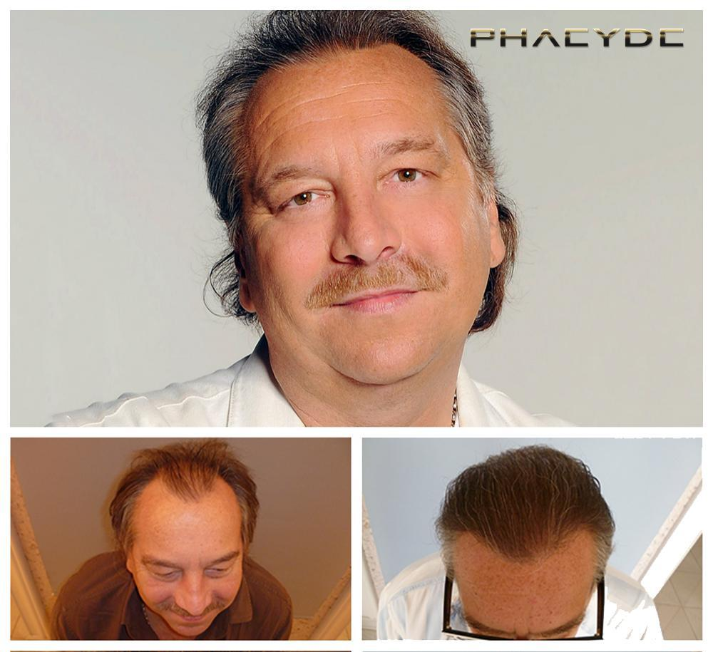 Hair transplant fue results before after photos imre bajor - PHAEYDE Clinic