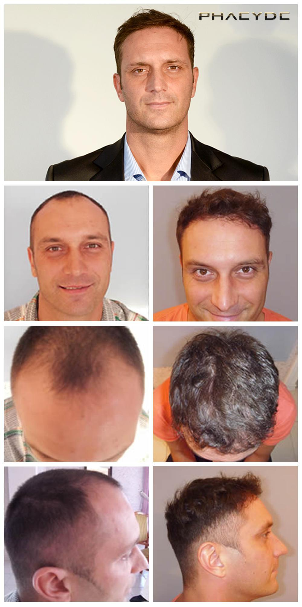 Hair transplant fue results before after photos istvan szebeni - PHAEYDE Clinic