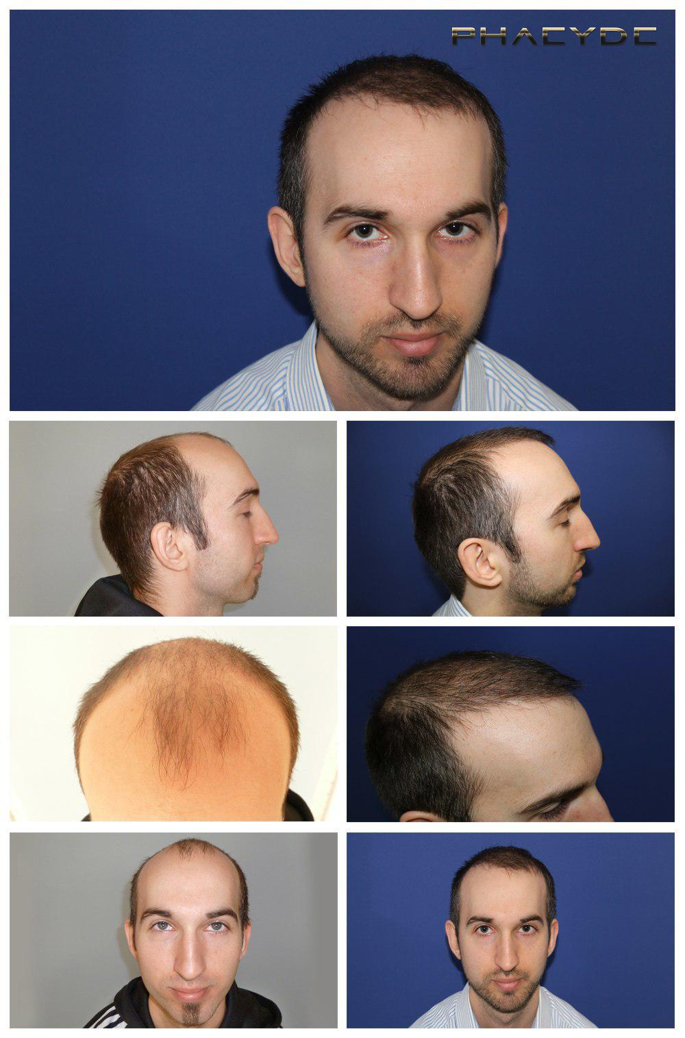 Hair transplant fue results before after photos james fenyvesi - PHAEYDE Clinic