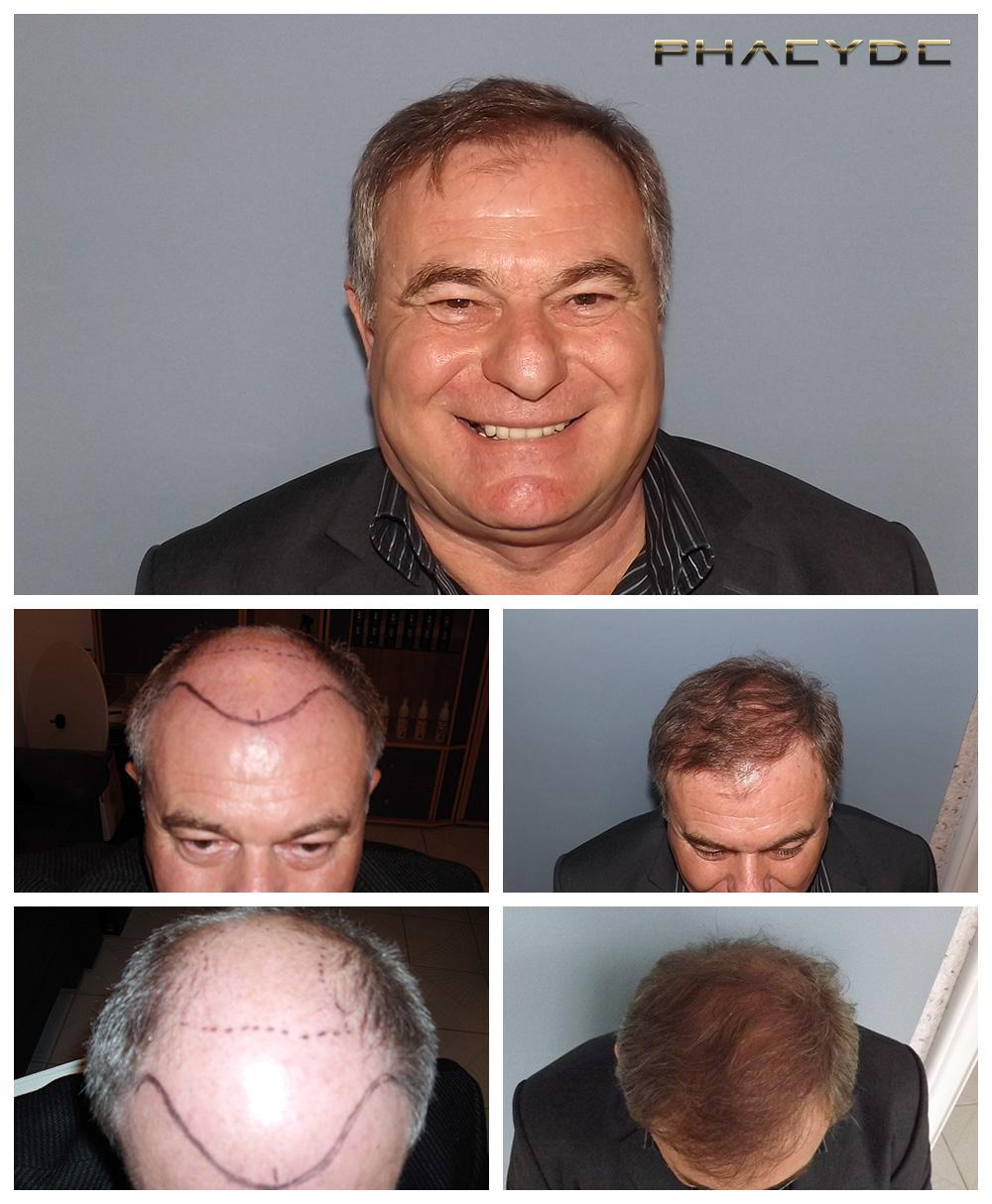 Hair transplant fue results before after photos joseph czinger - PHAEYDE Clinic