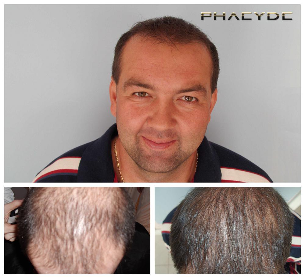 Hair transplant fue results before after photos laszlo d - PHAEYDE Clinic