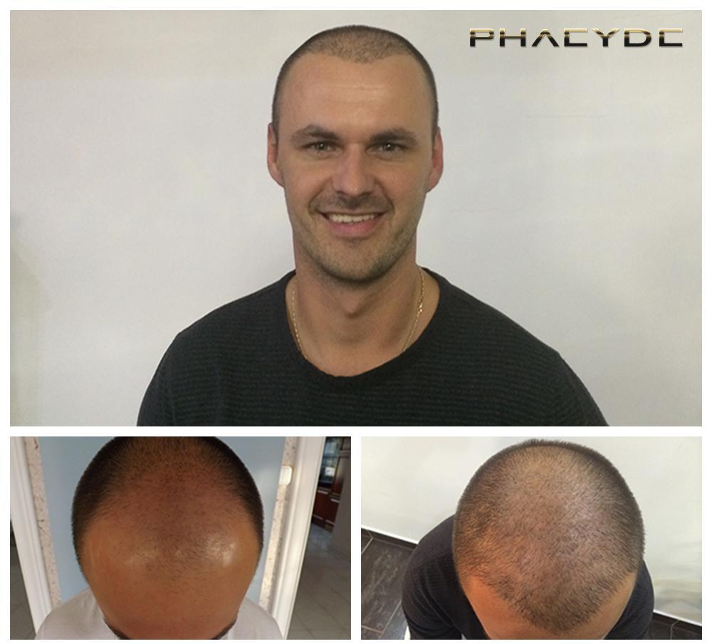 Hair transplant fue results before after photos leslie k - PHAEYDE Clinic