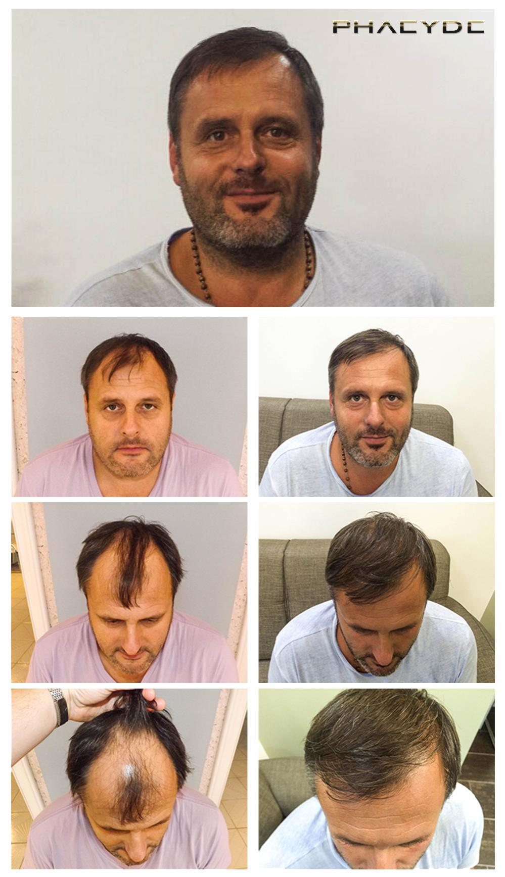 Hair transplant fue results before after photos michael k - PHAEYDE Clinic
