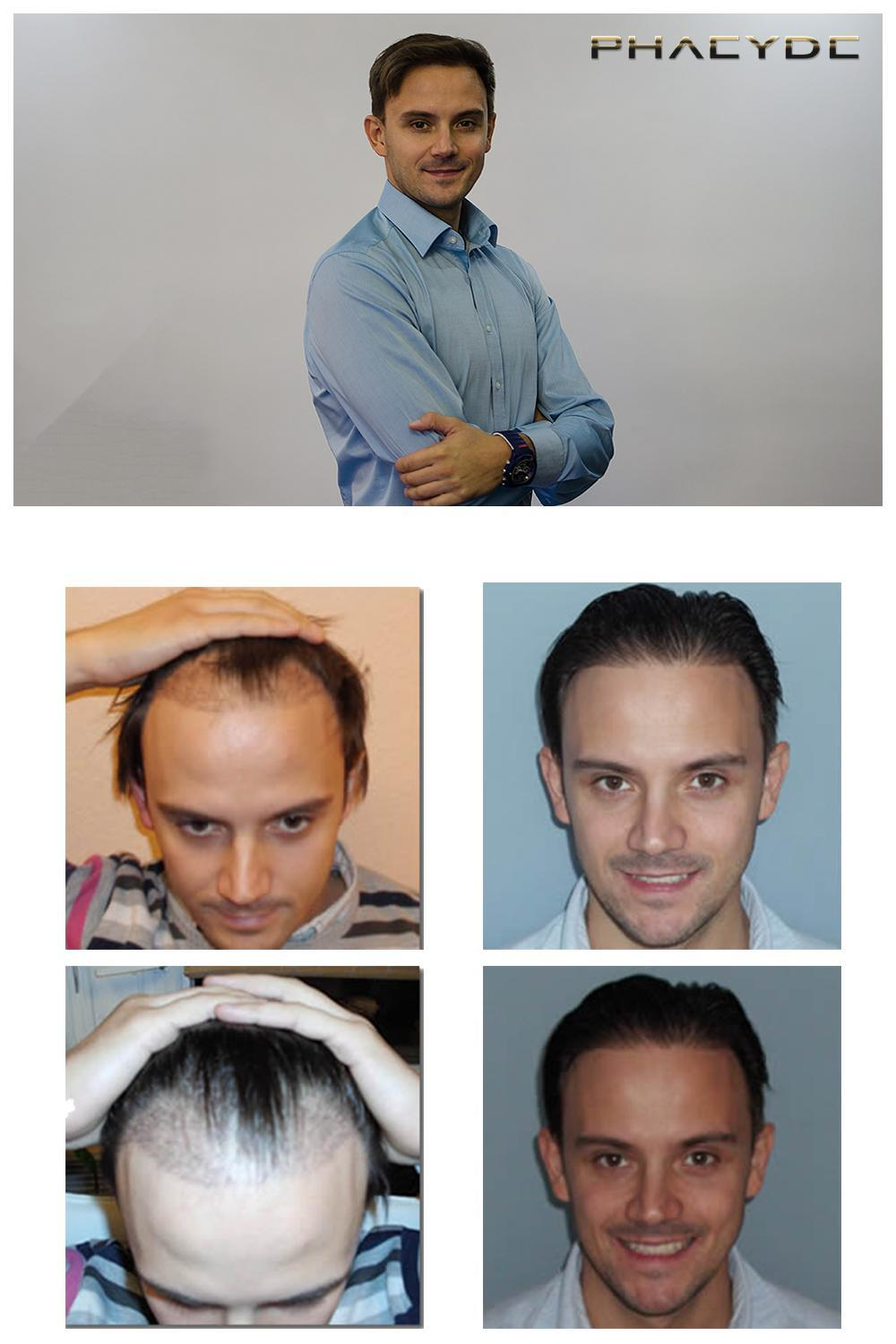 Hair transplant fue results before after photos michael soos - PHAEYDE Clinic