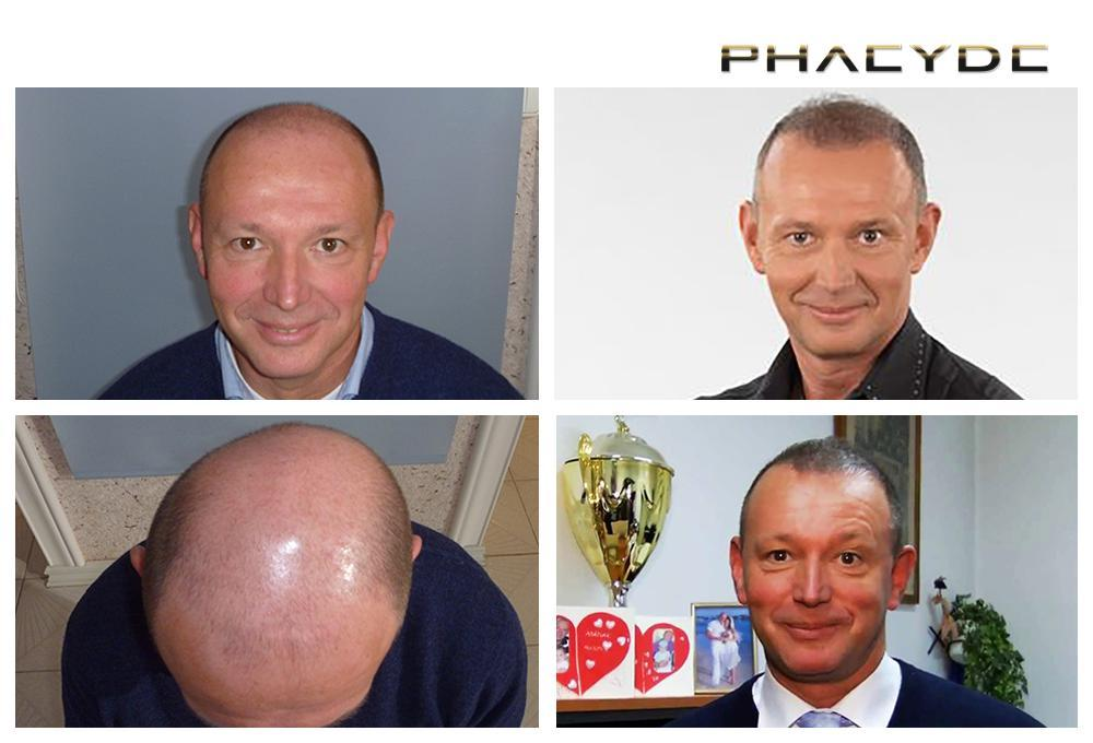 Hair transplant fue results before after photos pal gyorfi - PHAEYDE Clinic