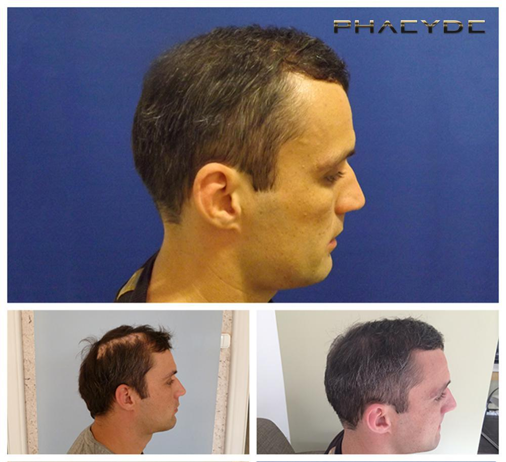Hair transplant fue results before after photos peter p gallery - PHAEYDE Clinic