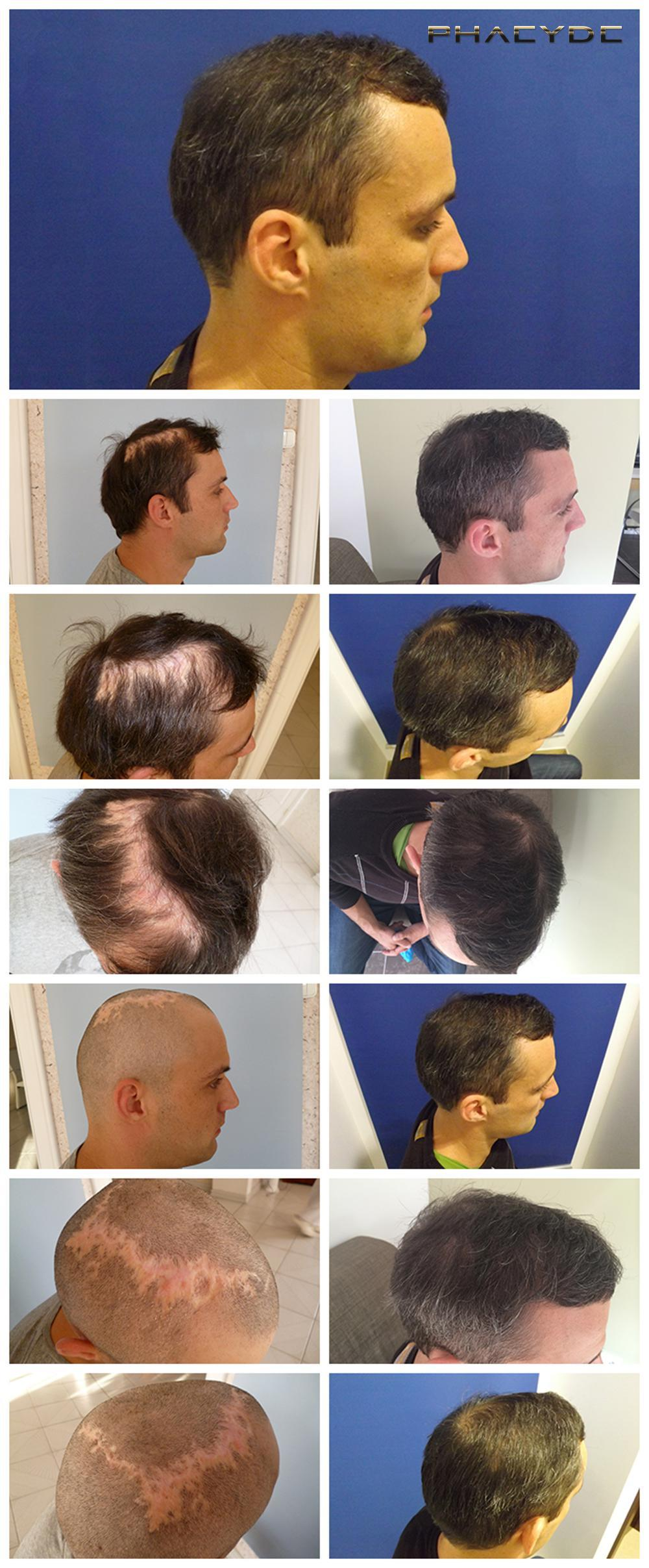 Hair transplant fue results before after photos peter p - PHAEYDE Clinic