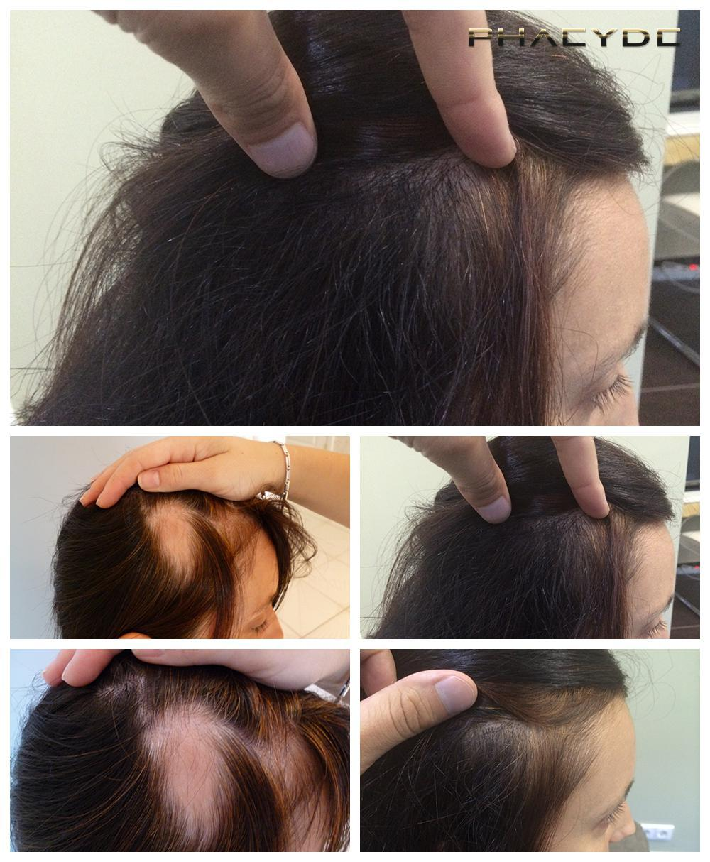 Hair transplant fue results before after photos reka d - PHAEYDE Clinic