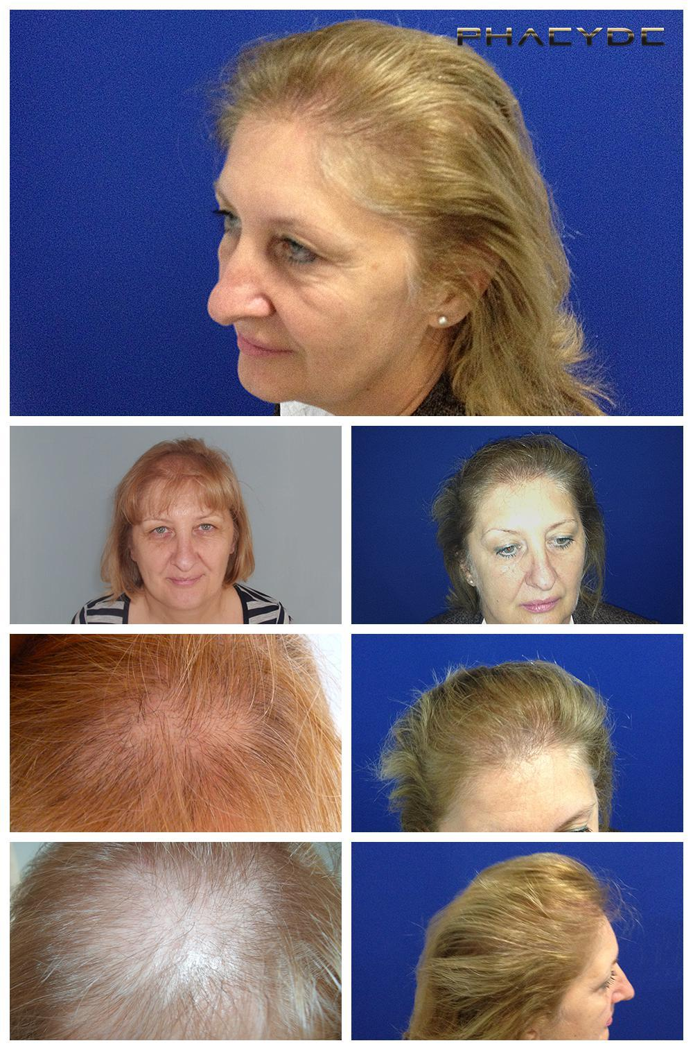 Hair transplant fue results before after photos susanne mikola - PHAEYDE Clinic