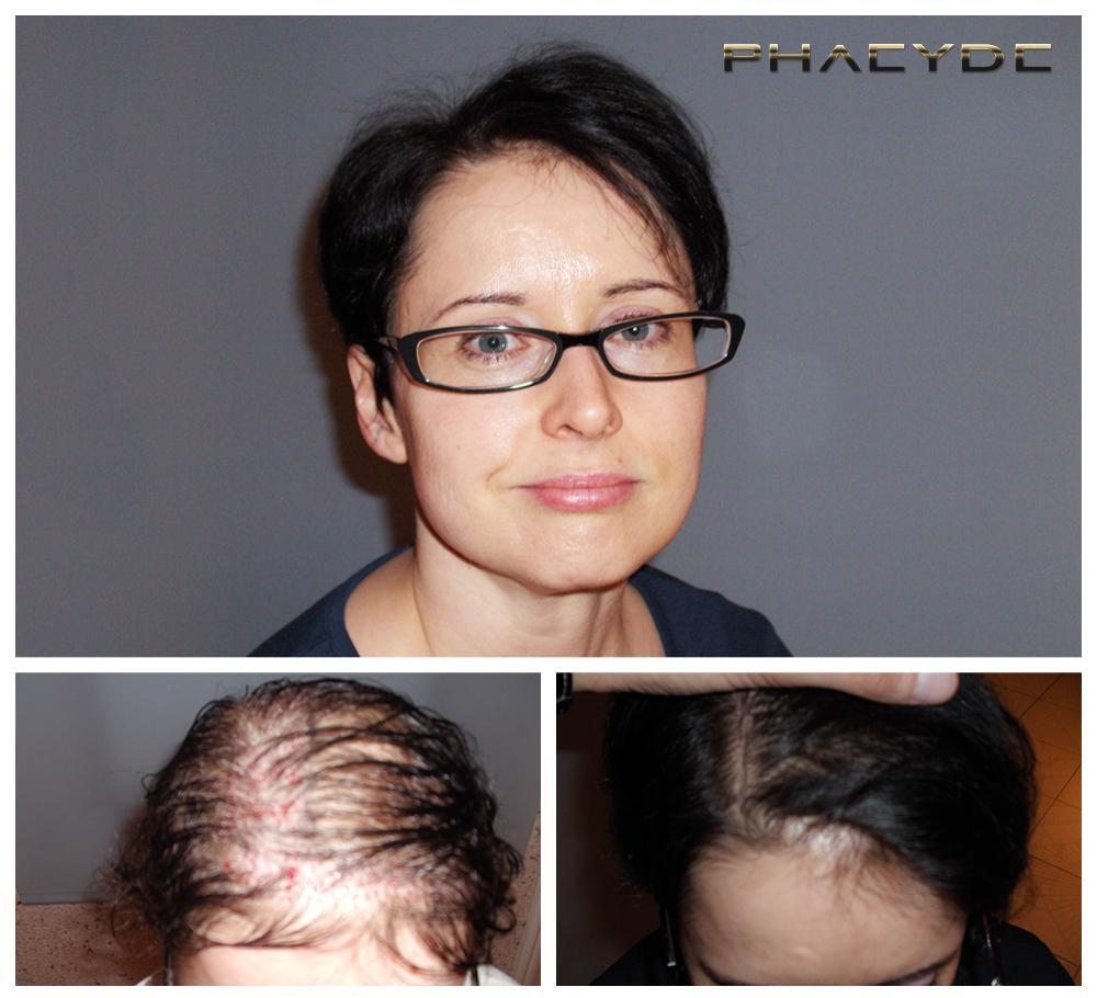 Hair transplant fue results before after photos susanne ujhegyi woman - PHAEYDE Clinic