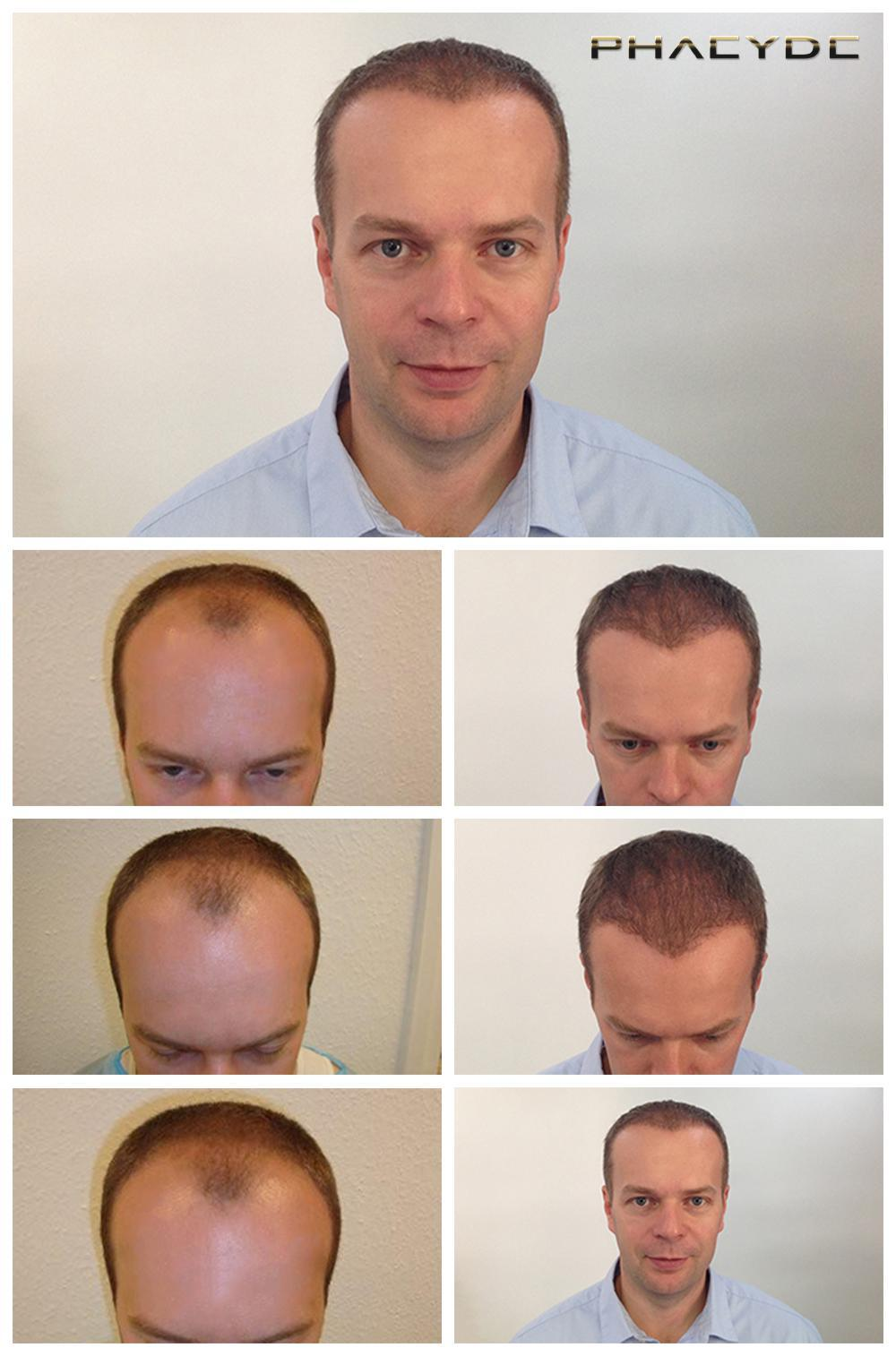 Hair transplant fue results before after photos thomas lajtos - PHAEYDE Clinic