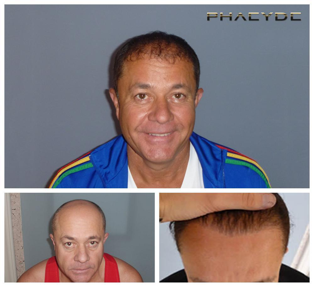 Hair transplant fue results before after photos zoltan cs - PHAEYDE Clinic