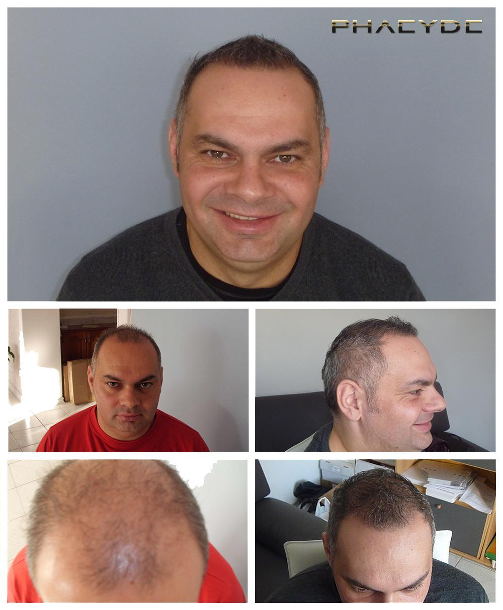 Hair transplant fue results before after photos zoltan lencse - PHAEYDE Clinic