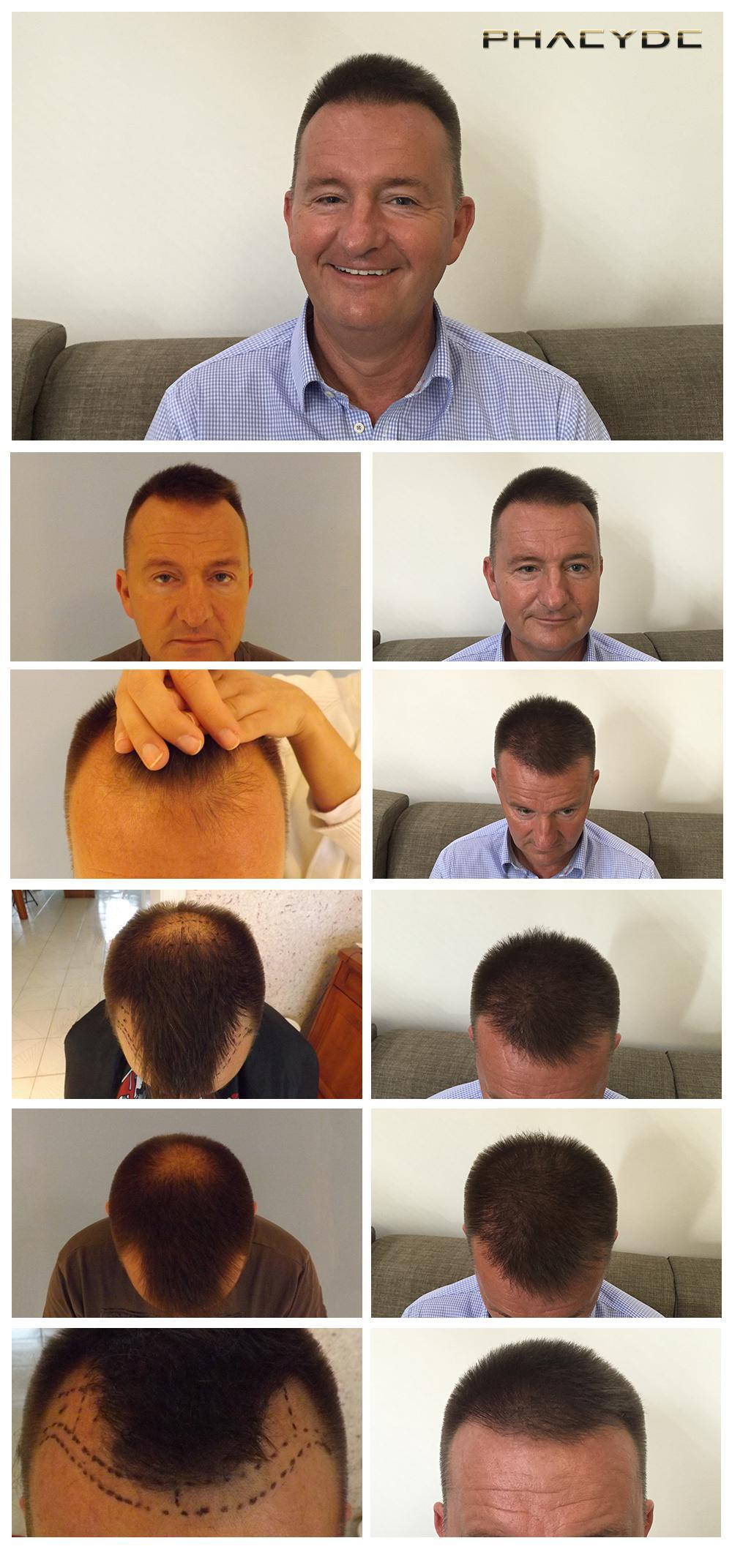 Hair transplant fue results before after photos zsolt m - PHAEYDE Clinic