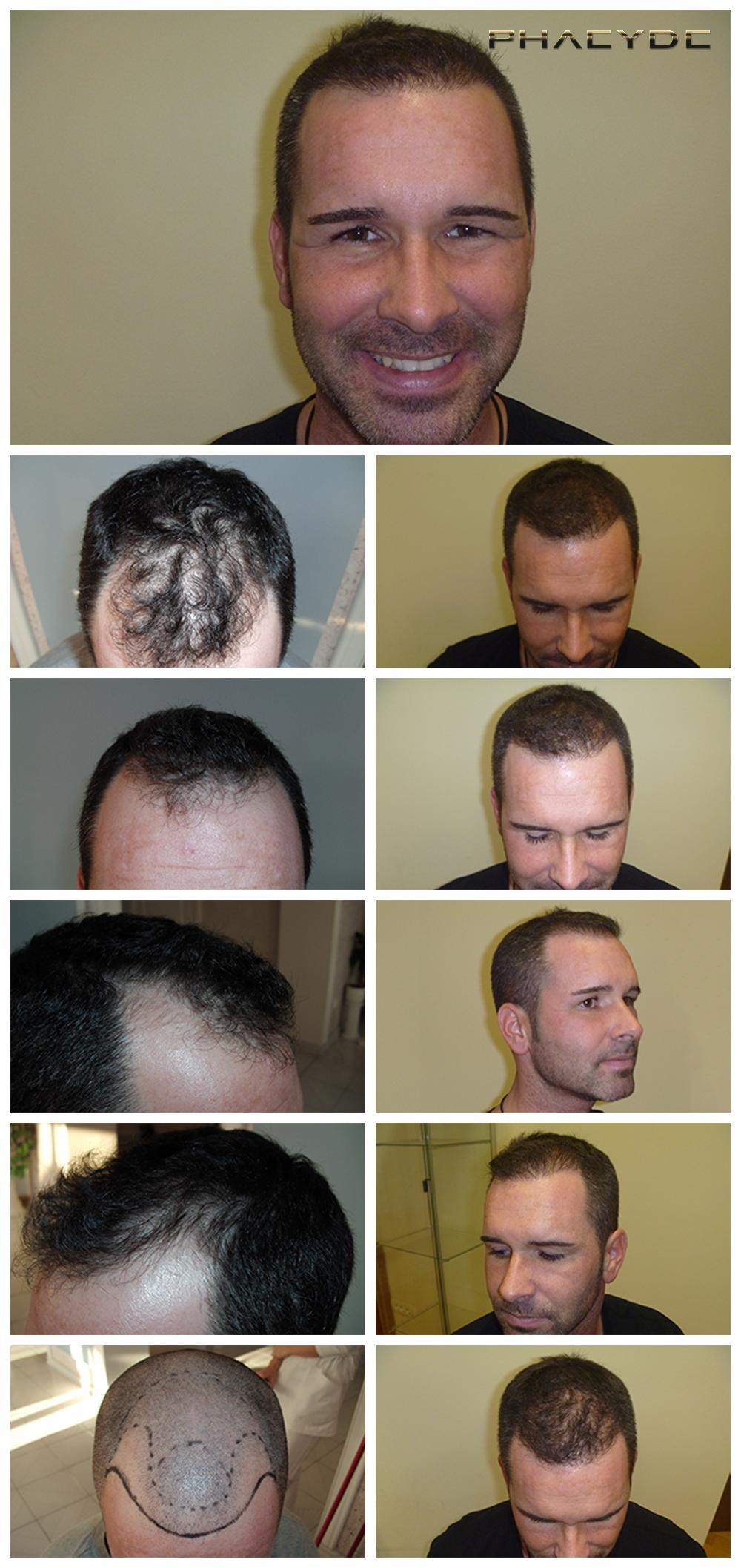 Hair transplant fue results before after photos zsolt vincze - PHAEYDE Clinic
